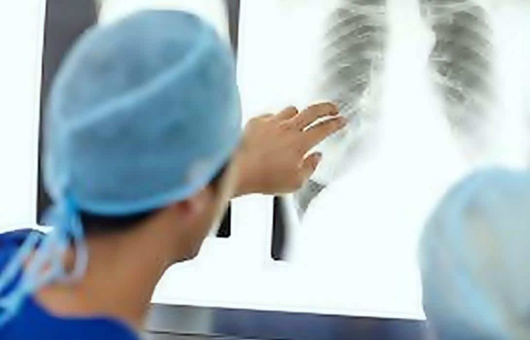 """""""แพทย์"""" แนะ เช็คสุขภาพปอดรับปีใหม่ ... ลดเสี่ยงมะเร็ง"""